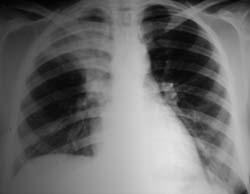 I polmoni affetti da Tbc